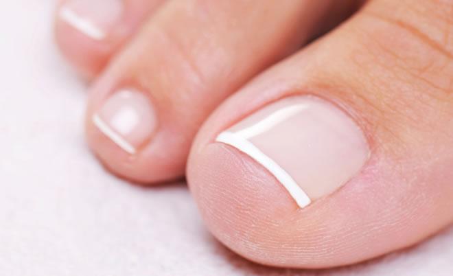Грибок ногтей стадии заболевания